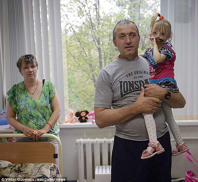 3歲女童「一出生沒嘴唇牙齒外露」媽媽當場嚇暈 醫生勸狠心拋棄「許多機構拒絕金援協助」...