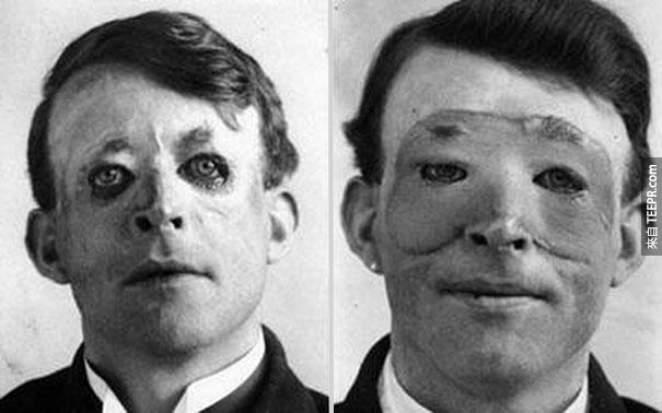 Walter Yeo (因臉部受創),第一位做整形和皮膚移植手術的男人 - 1917