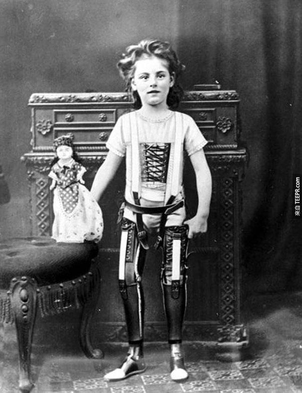 人造腳 - 英國 1890