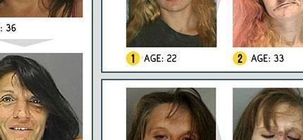 14個我見過最極端的吸毒後的臉部畸變。我看過後真的嚇到了!