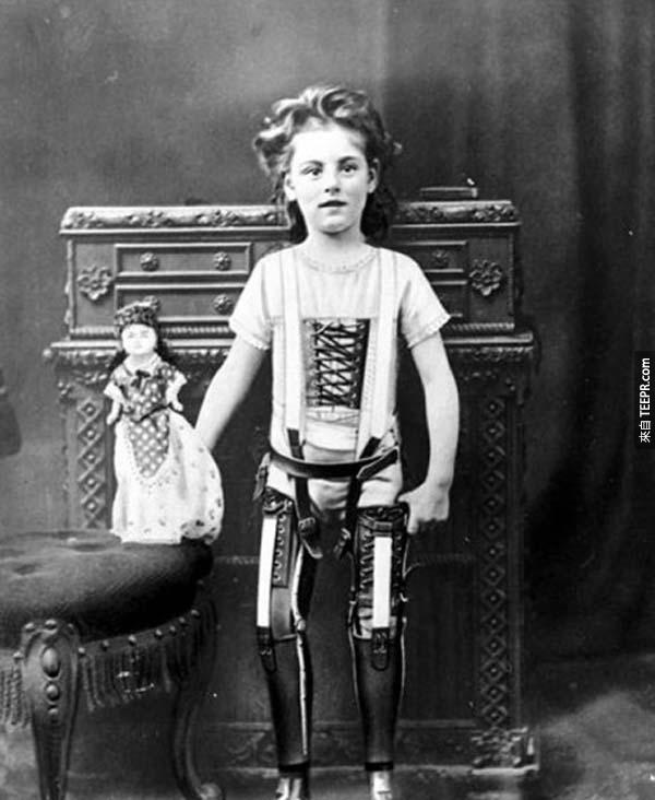 16)一個孩子與人工腿(1898)。