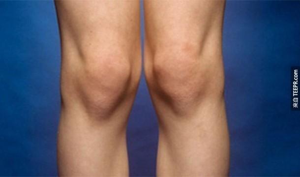 18. Genuphobia:膝蓋或下跪恐懼症