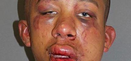 這個爸爸把性侵他兒子的人打爆之後,打給警察報案說他會需要一台救護車。
