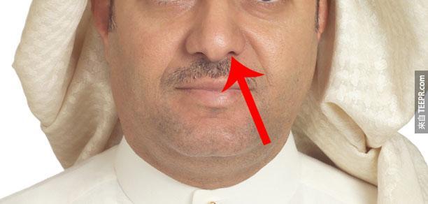 造成這名男子一天到晚流鼻血的事情真的太奇怪了!