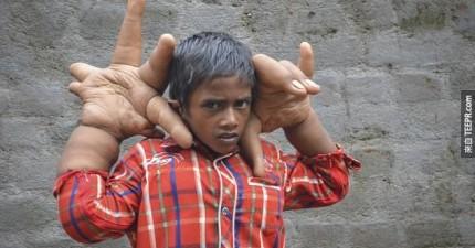 這個小男孩的手掌重12.7公斤,比他的頭還要大數倍。醫生權威都無法理解。