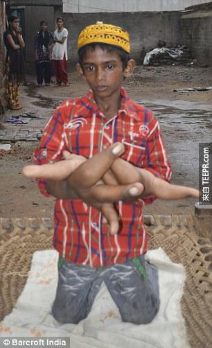 Kaleem was born with larger-than-average hands but they have continued to grow throughout his childhood