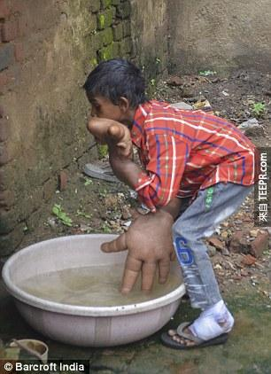 His mother Haleema, 27, said she knew he was different at birth but was powerless to help and the youngster's hands have now grown so large they measure 13 inches from the base of his palm to the end of his middle finger