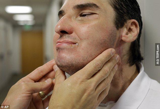 這名男子在17年前把自己的臉給射掉了。現在他的臉部修復成功,出現在GQ時尚雜誌裡面。