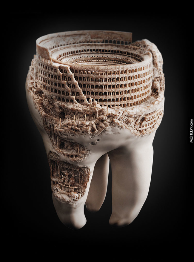 首先,你可以張開嘴巴先確認一下,一顆臼齒的大小。