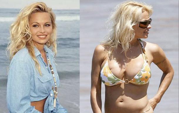 16. 潘蜜拉·安德森(Pamela Anderson),除了年龄变大,一定还有哪里也变大了...