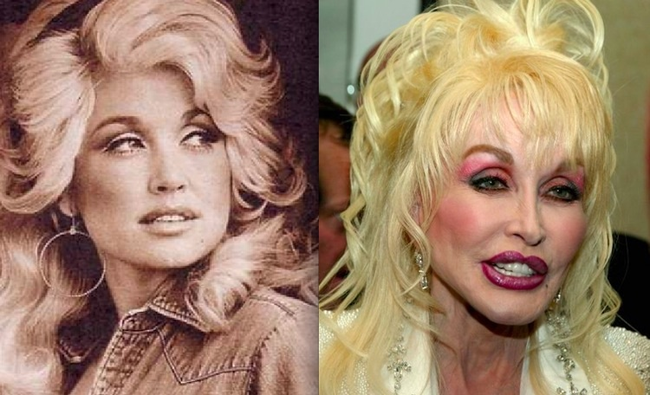 8. 桃莉·巴顿(Dolly Parton)整个人很明显也「调整过」啊!