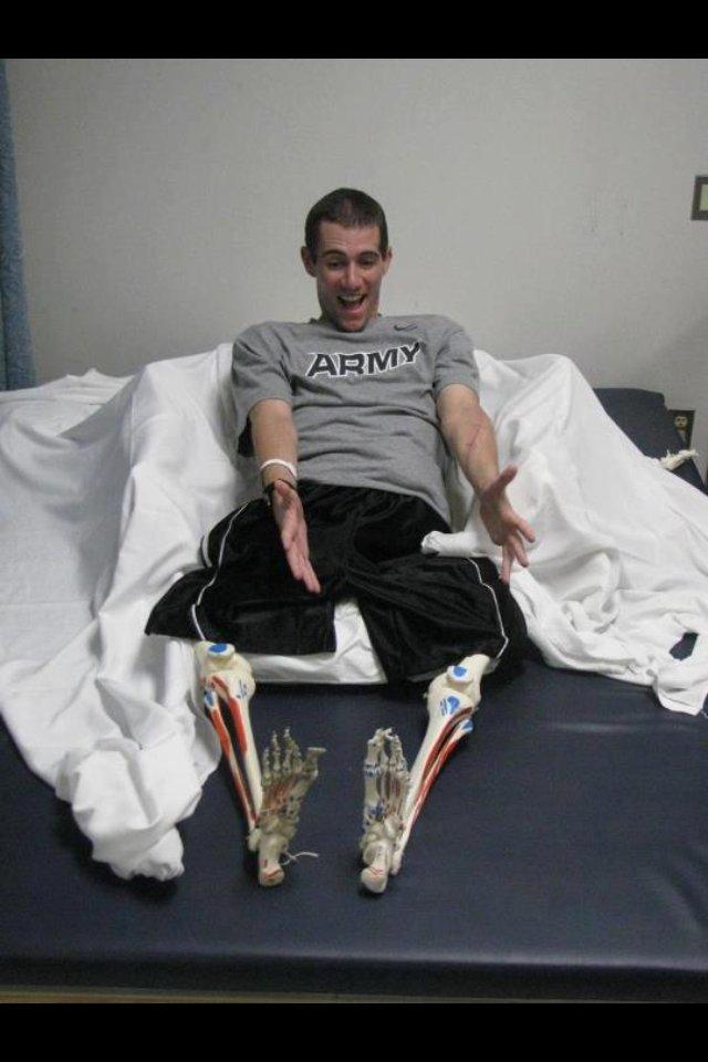 這13個人失去了他們的手或腳,但是卻沒有失去令人敬佩的幽默。