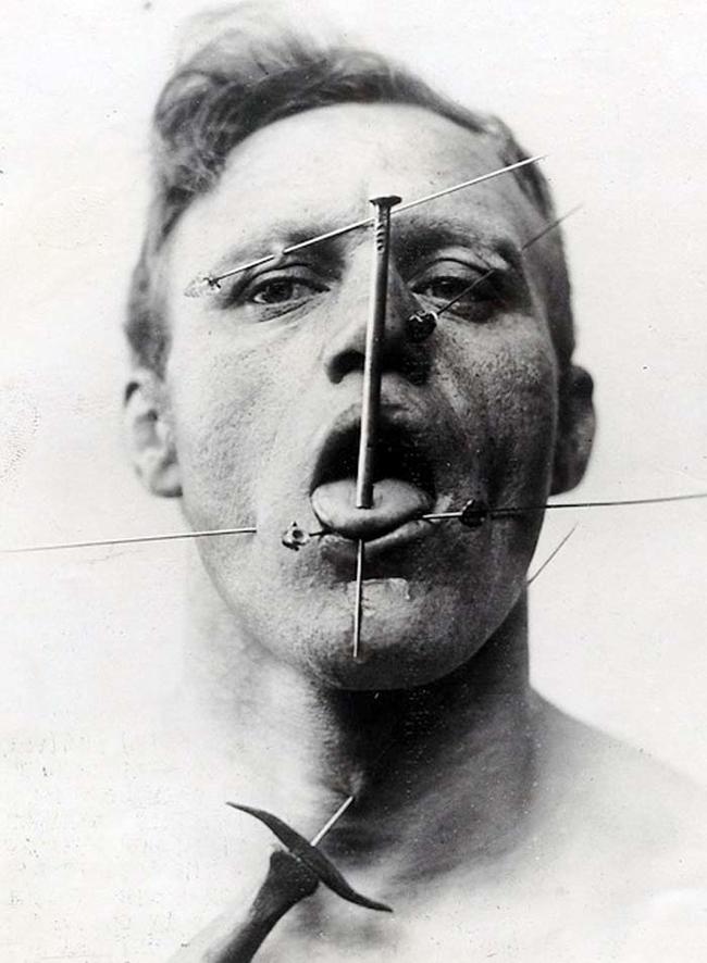 20張照片證明以前有畸形馬戲團