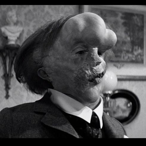 9. 約翰·赫特飾演《象人》的約瑟夫·梅里克 (John Hurt as Joseph Merrick in The Elephant Man)
