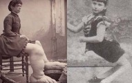 這些都不是合成圖片!歷史上就是真的有身體這麼奇異的人!