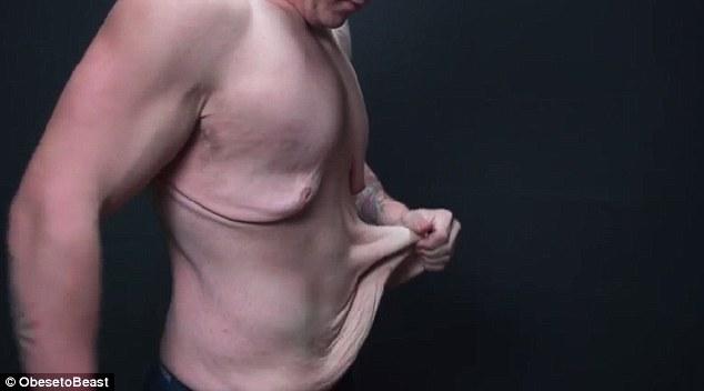 這個男孩劇烈甩掉72公斤變身健美帥哥,但卻留下一個讓他很自卑的後遺症。