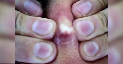 這名男人終於擠掉了脖子上20年的痘痘,蹦出來的畫面...造成了網路轟動。