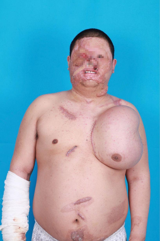 這名男子因為意外而毀容,醫生決定在他胸部上「種出」一張新的臉。