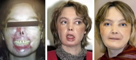 2. Isabelle Dinoire:臉被狗吃掉的女人。