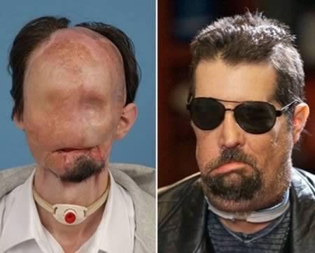 3. 整個臉部完全崩壞的Dallas Wiens。