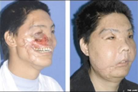 The man who had his face partially reconstructed after having his nose ripped off by a bear
