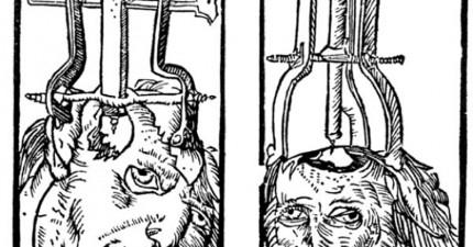 6種中古世紀的驚悚治療方式,以後我會帶著感恩的心去看醫生了。