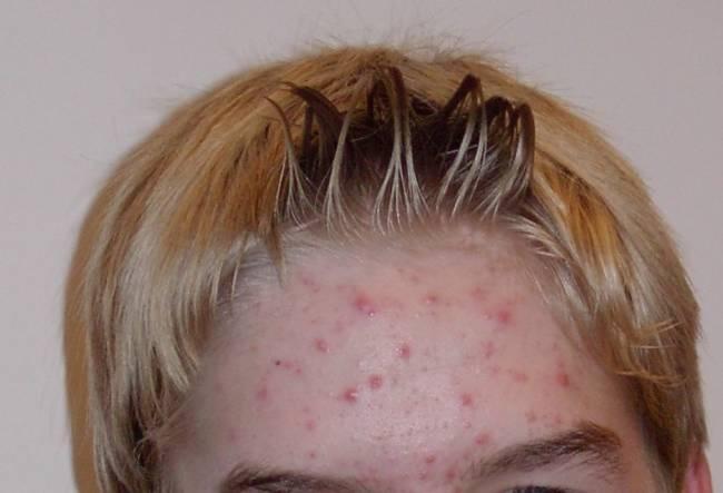 12個你必須知道有關你的皮膚的重要常識!