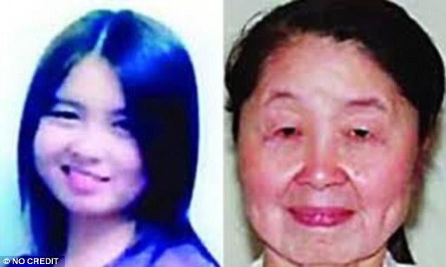 而在大陸河南省,則有一個更為驚人的例子。這個28歲的女人胡娟,她患有了相當罕見的皮膚鬆弛症(Cutis laxa),容貌從28歲的少婦,變為60、70歲老太太的模樣。這個罕見的疾病,全世界可能只有10個案例而已。