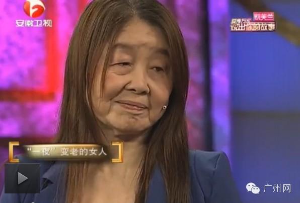 胡娟在11年前生產後,就發現自己皮膚開始改變,臉部和脖子的皮膚開始鬆弛、失去彈性。而這個症狀並沒有影響她身體的其他部位。