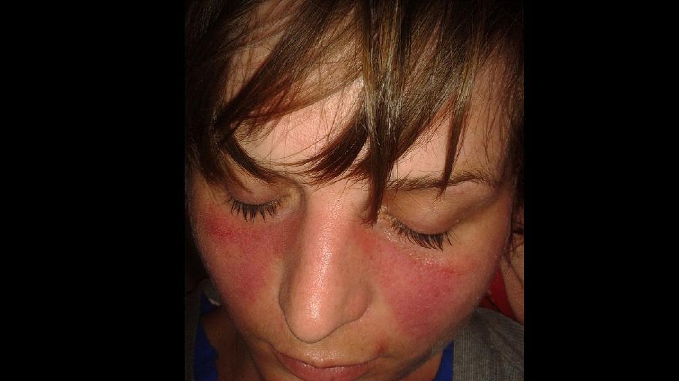 11個臉部的徵兆讓你看出自己有什麼重大疾病!
