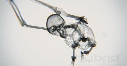 當你在做瑜伽時,在X光下你的骨頭看起來像是什麼樣子?