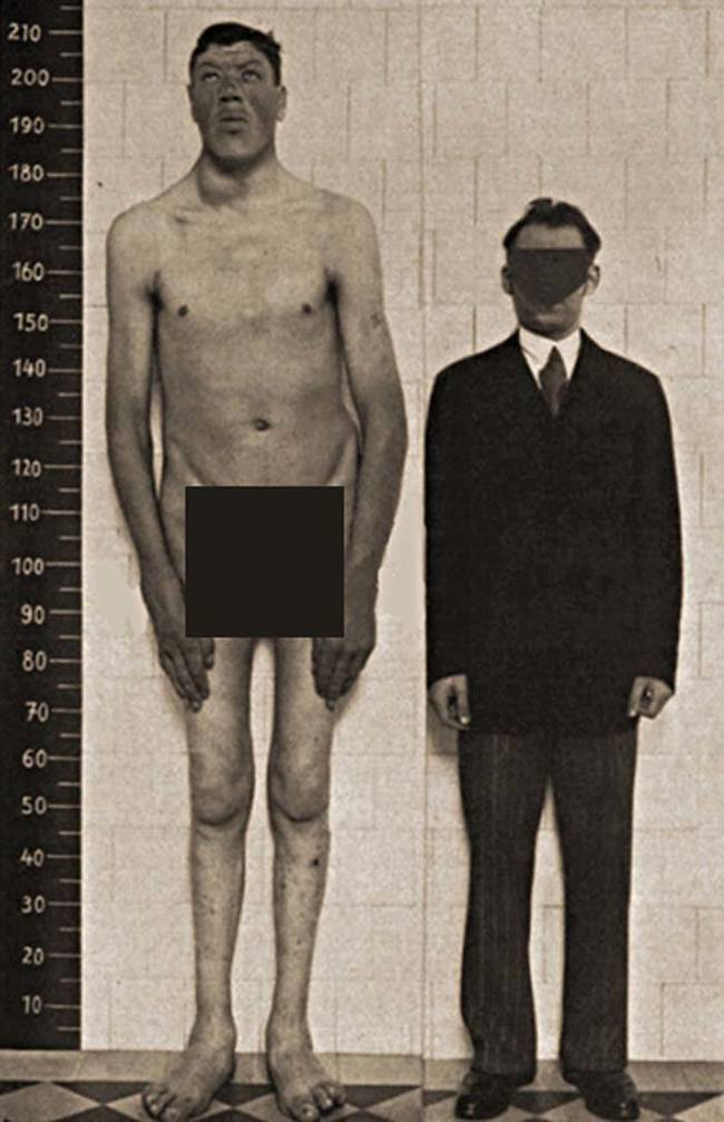 Rainer's growth spurt took the medical community by surprise. Doctors examined Rainer  to try to determine the source of his wild growth. The conclusion they reached was that a tumor on Rainer's pituitary gland was leading to an overproduction of growth hormones. Here you can see Rainer's height compared to a normal-sized man.