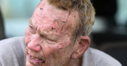 這位82歲的老爺爺混身傷衝進火場,不是為了財產,而是更加珍貴的東西...