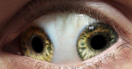 史上曾經發生過最奇怪的眼睛變異現象...比恐怖片還恐怖啊!
