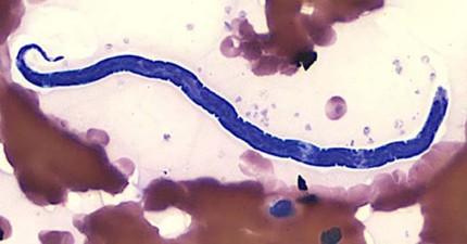 這個寄生蟲在顯微鏡下看來普通,但當他出現在人的眼球時就是夢魘的到來...