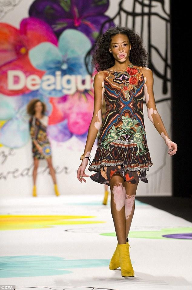 即便如此,她還是在近期的西班牙時裝品牌Desigual 的時裝秀勇敢地站上了舞台。