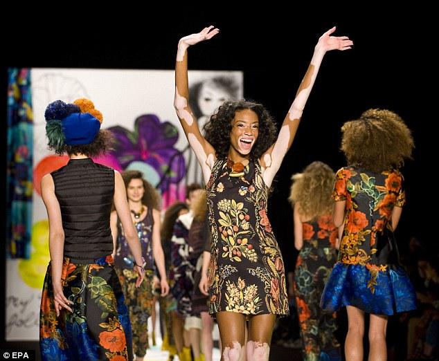因為她勇於表現自我的精神,Winnie 也被Desigual 選為是他們品牌的最新代言大使,也認為她就是「美的象徵」。