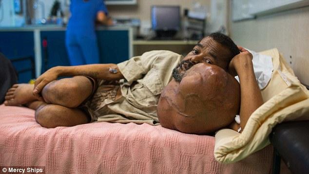 這顆7公斤世界最大腫瘤40年來一直侵擾這位偏遠地區的爺爺,直到跨國醫療團隊改變了他的生命。
