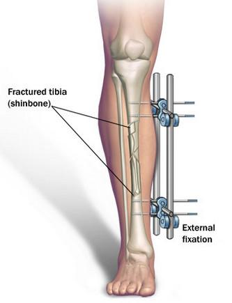 经过了一段时间,这个肢体延长器会拉长你的骨头,接着你必须等待骨头渐渐地愈合起来,把增加的长度空隙填补起来后,你就能够长高了。而这样一个过程至少要花上3个月,除此以外,在接受手术之后更要花上好多个月来进行身体上的治疗。