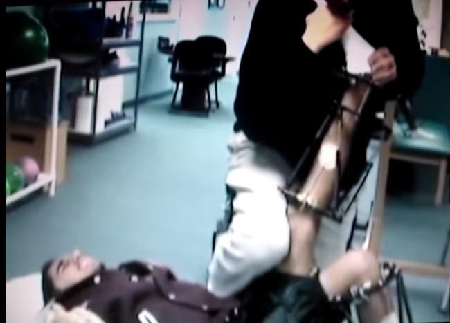 手術過程一開始,醫生會先把你的腿打斷,並在斷裂處置入骨釘。