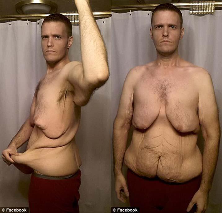 他曾重達283公斤並且有憂鬱症,直到一名奇女子進入到他的生命中!
