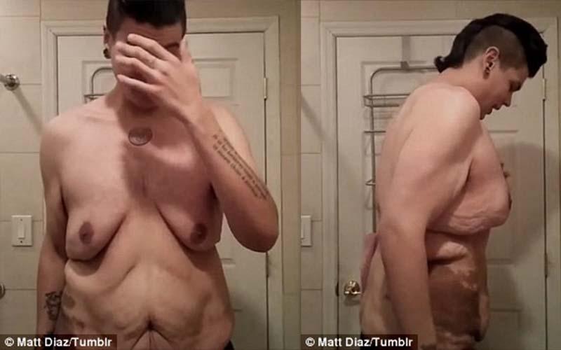 原本226公斤的他成功狠甩122公斤,但脫掉衣服...卻是他最努力要克服的自卑。