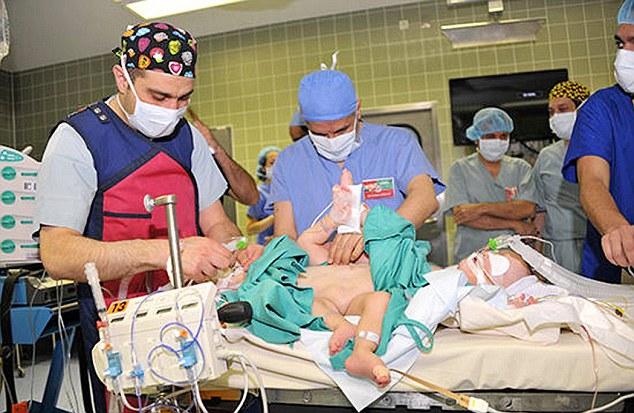 這對下半身及器官相連的連體嬰,在經過9小時的醫療奇蹟後將完全復原!