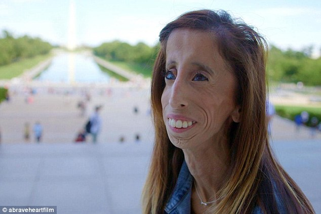 她曾經被說是「全世界最醜的女人」甚至是去死,但看看她怎麼用她的人生來反擊!