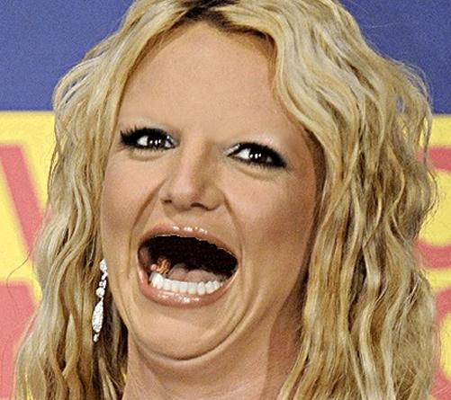 14位「無齒」的明星會讓你知道牙齒真的太重要了!