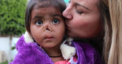 沒人要收養出生鼻子就被蟲咬掉的小女孩...在一次又一次被拒絕後,奇蹟終於發生了!