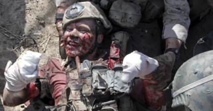 拆彈專家被炸斷手腳後故意拍下這張充滿笑容的照片。這才是「真正的勇敢」!