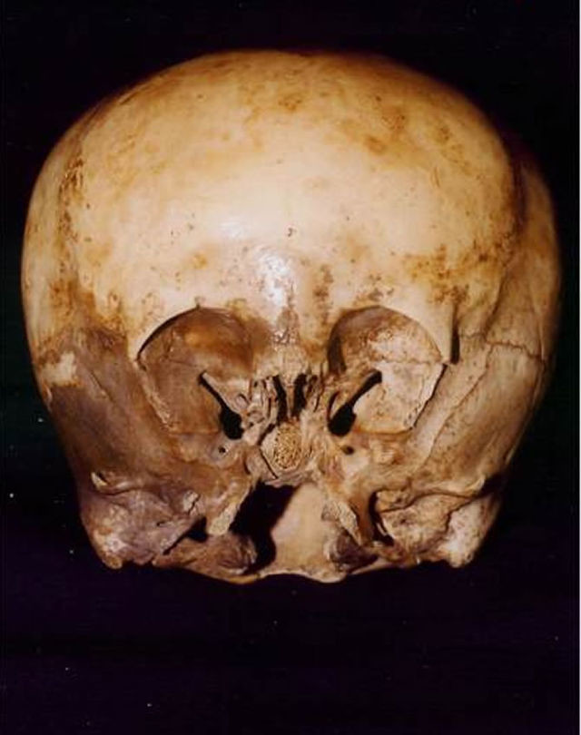 In addition to the 900-year-old skull being 30% larger than a normal human's, the inner ear is also much larger. It suggests the skull is capable of hearing otherworldly, high frequency sounds.