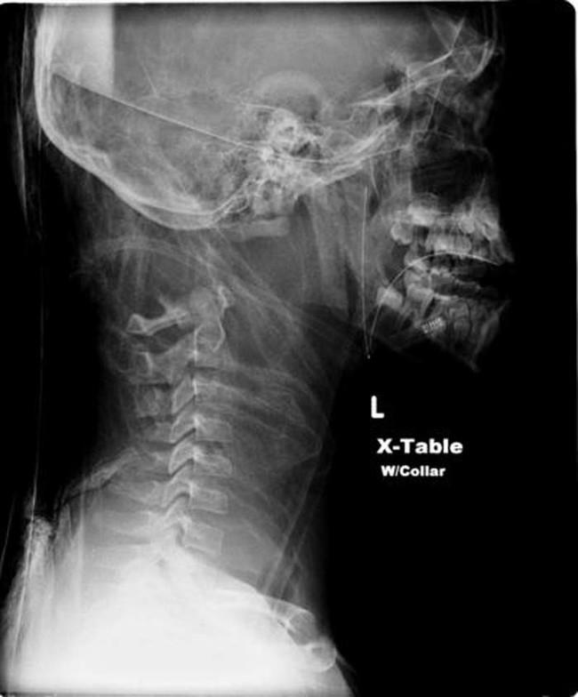「當人被斬首後」以科學角度這就是會發生的事情!8個關於斬首的驚悚真相
