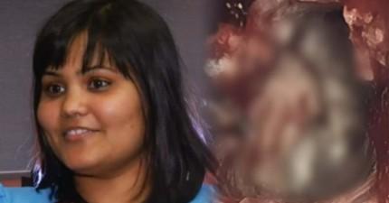 這位女孩面臨大腦障礙最後就醫,結果醫生在她大腦發現到「邪惡的雙胞胎」!